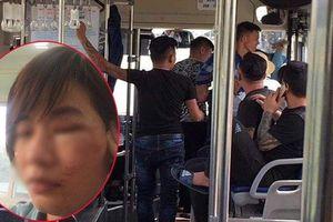 Nữ phụ xe bị 5 thanh niên xăm trổ hành hung: 'Chúng dọa đánh thế còn nhẹ'