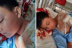 Xác minh nghi vấn bé trai bị cha ruột tạt nước sôi gây bỏng nặng