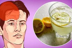 8 thực phẩm chữa đau nửa đầu hiệu quả hơn cả thuốc