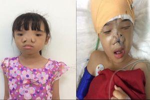Phẫu thuật thành công cho bé gái bị loại dị tật hiếm gặp trên thế giới