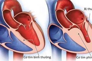 Viêm cơ tim: Dấu hiệu nào cảnh báo nguy hiểm?