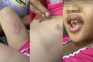 Tạm giữ cha dượng và mẹ của bé gái 6 tuổi bị hành hạ, châm thuốc lá vào người ở Sài Gòn