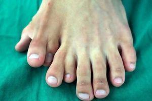Chàng trai có 9 ngón trên một bàn chân