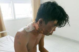Thanh niên 24 tuổi bị chị gái đổ nồi nước sôi lên đầu