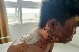 Điều tra vụ việc em trai bị chị gái đổ nước sôi lên đầu gây bỏng nặng