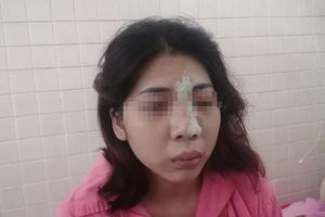 Mù mắt sau khi tiêm filler nâng mũi tại spa