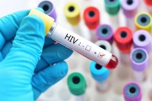 Phát hiện ra chủng HIV mới lần đầu tiên sau 19 năm