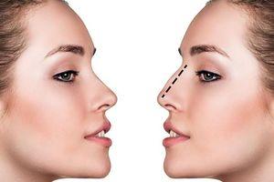 Một phụ nữ nguy kịch nghi sốc phản vệ khi gây mê nâng mũi