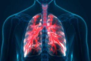 Triệu chứng và cách chữa bệnh phổi tắc nghẽn mãn tính