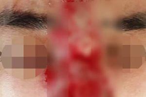Thanh niên suýt mù mắt sau tiêm filler nâng mũi ở spa
