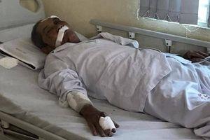 Cụ ông 80 tuổi bị gã xe ôm đánh: Tôi ra hóng gió mà anh ta đánh dã man quá!