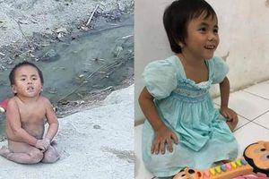 Cuộc sống của 2 em bé dân tộc được nhận nuôi khi mang bệnh bây giờ ra sao?