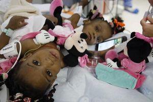 Phẫu thuật tách rời thành công cặp bé song sinh dính liền