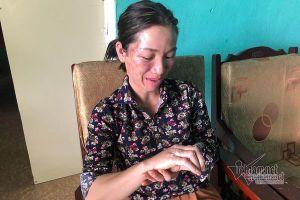 Nữ cán bộ ở Vân Đồn bị ném bom xăng bỏng mặt và tay