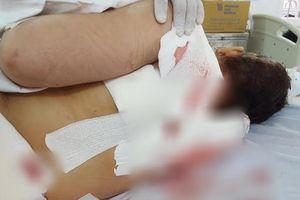 Lâm Đồng: Mâu thuẫn gia đình, chồng cắt cổ vợ rồi tự sát