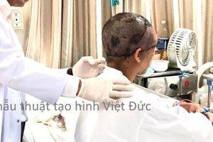 Hà Nội: Người phụ nữ bị lột toàn bộ da đầu vì tóc quấn vào máy