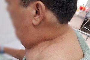 Uống rượu suốt 40 năm, người đàn ông phát hoảng vì 'mọc' khối u khủng
