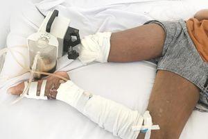 Nhờ thầy lang trị rắn cắn, bé gái 13 tuổi phải cắt bỏ chân