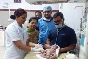 Kỳ lạ: Bà mẹ sinh con 2 đầu, 3 tay