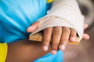 Cách sơ cứu khi bị gãy xương