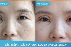 Công nghệ tái phẫu thuật mắt '3D Perfect Eyes Revision'