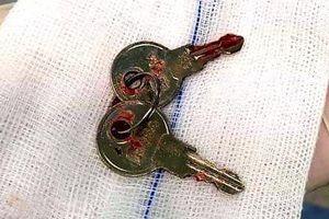 Hy hữu: Mẹ đi tìm chìa khóa không thấy, hóa ra con đã nuốt vào bụng