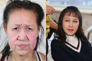 Sau phẫu thuật thẩm mỹ, thiếu nữ trông như bà lão muốn trở lại trường