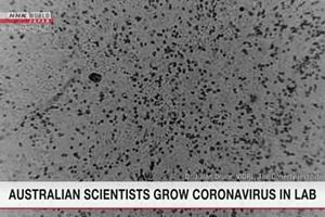 Úc nuôi cấy thành công virus corona chủng mới