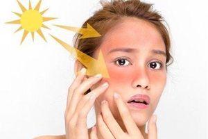 4 bí quyết chữa cháy nắng cho da từ thiên nhiên cực đơn giản, bạn có biết?