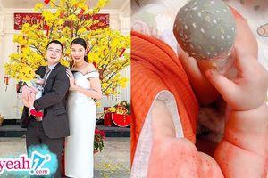 Vợ chồng siêu mẫu Lan Khuê 'đau đầu' vì quý tử mắc bệnh theo gen di truyền dù mới 4 tháng tuổi