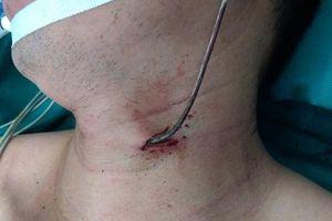 Người đàn ông Sơn Lôi, Vĩnh Phúc bị thanh sắt bắn vào cổ khi sửa xe máy bên đường