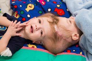Bác sĩ tách cặp song sinh dính đầu ở New York qua đời vì Covid-19