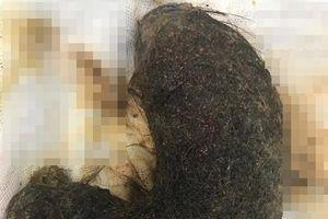Nuốt tóc suốt 9 năm, bé 11 tuổi có khối u tóc khổng lồ chiếm gần hết dạ dày
