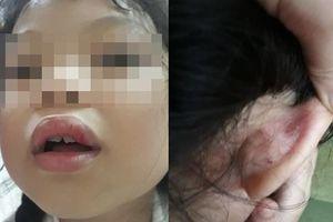 Hà Nội: Đón con về, phụ huynh 'bất ngờ' khi con bị sưng môi, xước sát tai