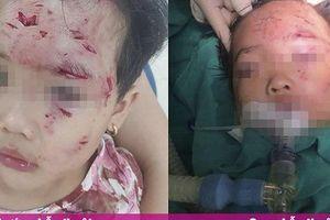Bé gái 3 tuổi bị chó nhà hàng xóm cắn nhiều vết thương nặng, phức tạp vùng hàm mặt