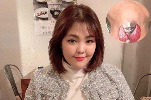 Nữ blogger nổi tiếng Hàn Quốc mắc ung thư có nguy hiểm?