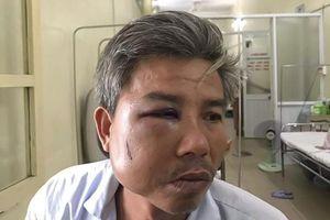 Khởi tố người đánh nhân viên Trung tâm Công viên cây xanh Huế