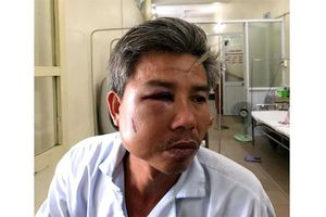 Khởi tố chủ quán cafe đánh trọng thương nhân viên trung tâm công viên cây xanh Huế