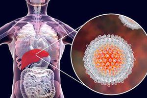1/6 bệnh nhân ung thư có liên quan đến viêm, tuyệt đối đừng chủ quan