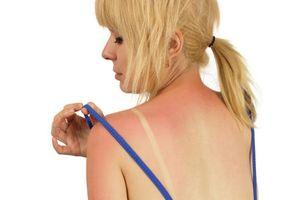 9 thực phẩm giúp chống cháy nắng trong mùa hè