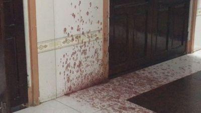 Bị tấn công bằng mắm tôm, cụ bà nhập viện