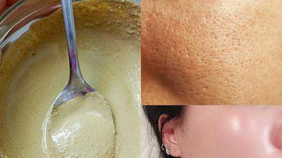 Đắp mặt nạ 4 thành phần này thường xuyên, lỗ chân lông biến mất hoàn toàn giúp làn da căng mịn, trắng mướt sau 7 ngày
