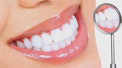 Răng trắng như bọc sứ chỉ nhờ làm điều này 3 phút