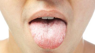 Những dấu hiệu bất thường ở lưỡi cảnh báo bệnh