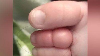 Clip: Bé sơ sinh suýt phải cắt bỏ ngón chân, khi biết nguyên nhân thì ai cũng phải bất ngờ