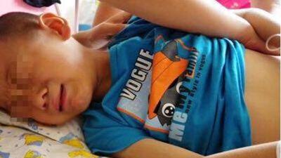 Bé trai 5 tuổi mắc căn bệnh nguy hiểm tưởng như chỉ có ở người lớn