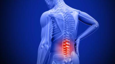 Lôi thủ phạm gây đau lưng trái phải 'ra ánh sáng'
