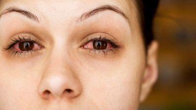 Tại sao mắt chúng ta lại đỏ khi uống nhiều rượu bia?