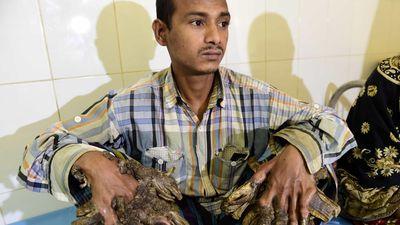 13 năm khốn khổ của 'người cây' trước khi xin cắt cụt tay