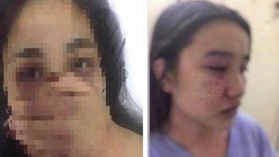 Bác sĩ đánh nữ thực tập sinh: 'Lộ' góc khuất 'đen' của ông L.Q.H.P